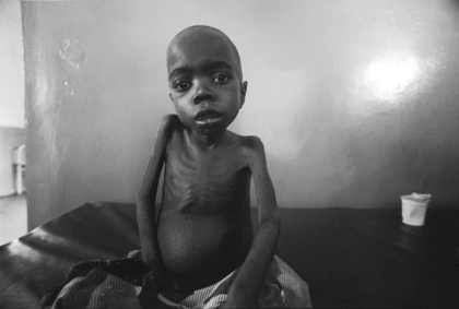 A Congolese child suffering from malnutrition waits to die in a clinic in North Kivu, DRC. Such images are perpetually used to provoke Western media spectators to donate to corporate relief operations. – Photo: Keith Harmon Snow, 2005
